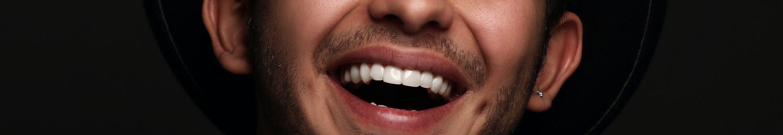 witte-tanden-lach